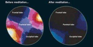 Why mediate? Brain-300x152